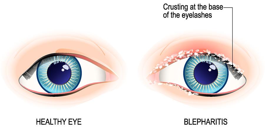 Blepharitis Aoa