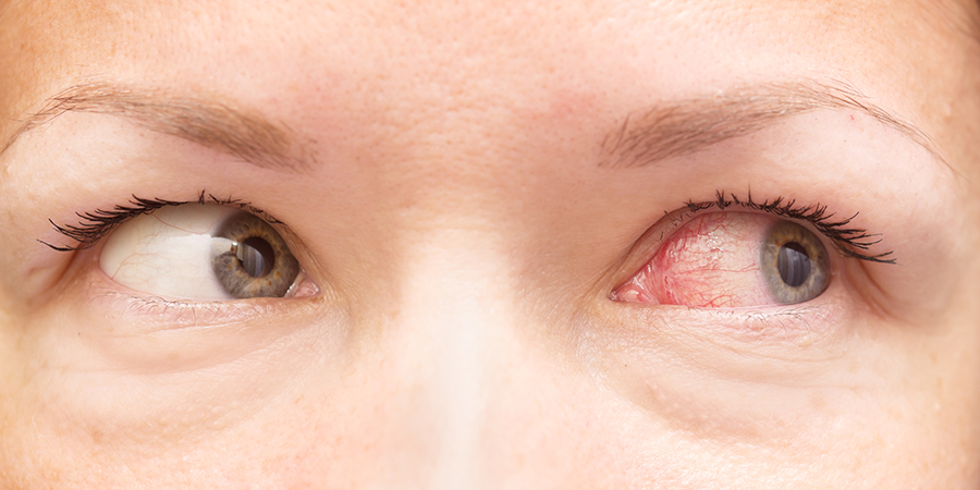 Steroid eye drops for viral pink eye best steroid source