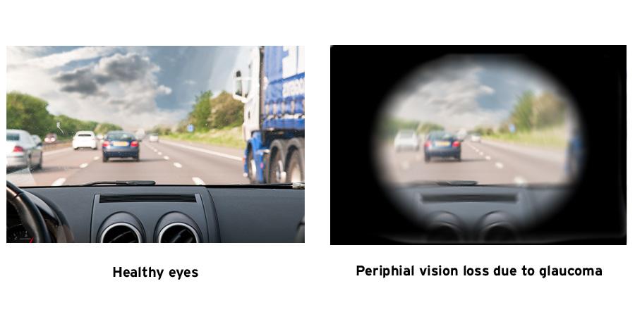 glaucom vizual